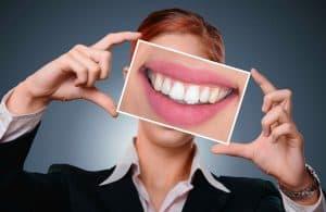 女人向我们展示了她的牙齿的照片